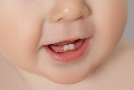 赤ちゃんの歯について知っておきたいこと