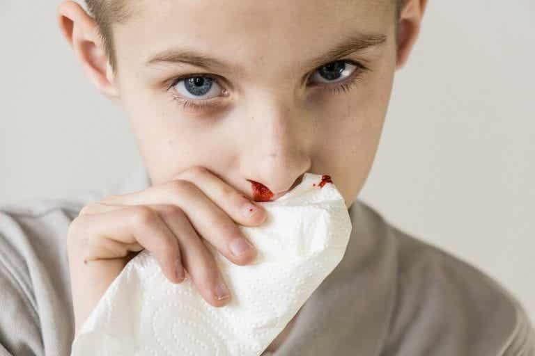 子どもの鼻血:原因と治療