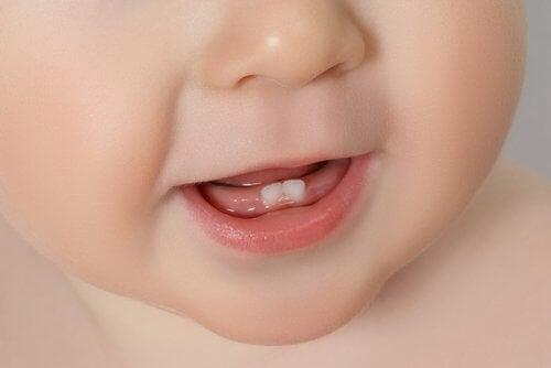 下の前歯2本が生えた赤ちゃんの口