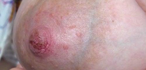 乳首のひび割れ 乳首の痛み
