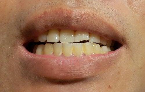 子どもに健康的な白い歯を!歯の汚れについて