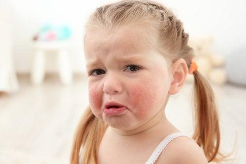 子どものアレルギー