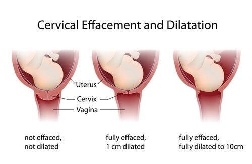 子宮口 拡張