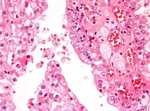 腎臓がん細胞 腎臓がん 小児期の腎臓がん 子ども