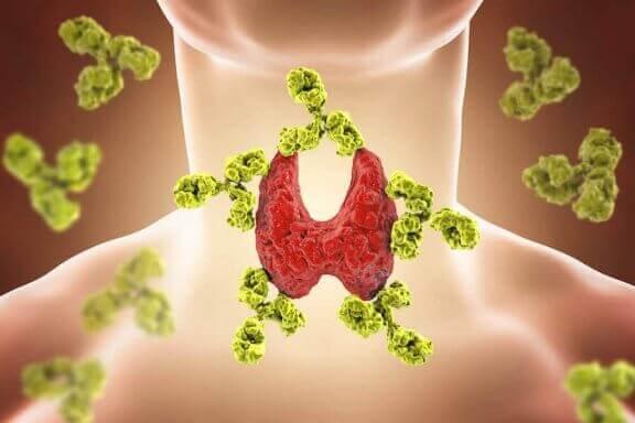甲状腺機能低下症 橋本病 甲状腺機能低下症 子ども