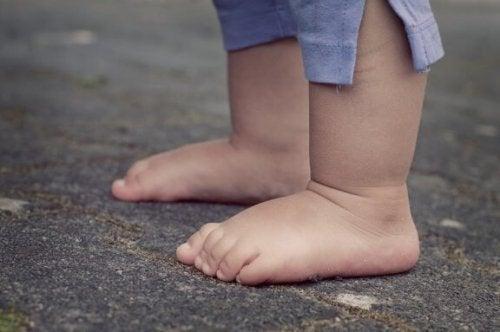 子どもの軟骨無形成症について:その原因と特徴を見てみよう