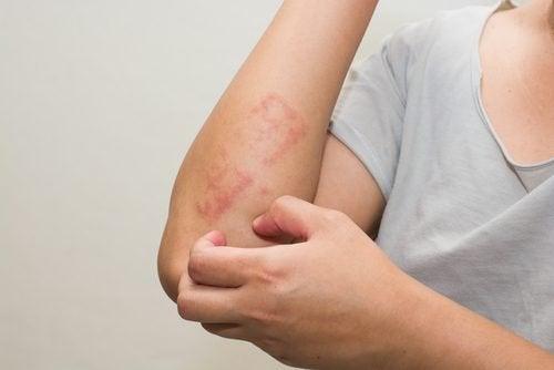 乾癬の治療 子どもの乾癬 治療法