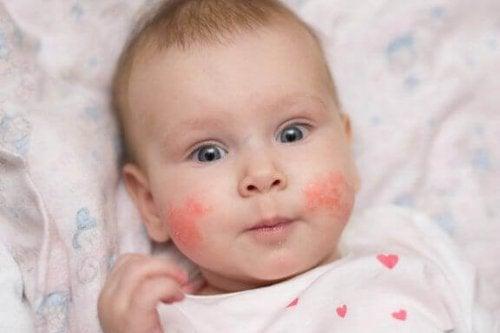 子どもの湿疹の発生を防ぐ方法:兆候を見極めて素早く対処!