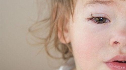 赤ちゃん   結膜炎   原因