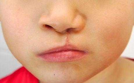 先天的な異常 頭蓋顔面形態異常 赤ちゃん