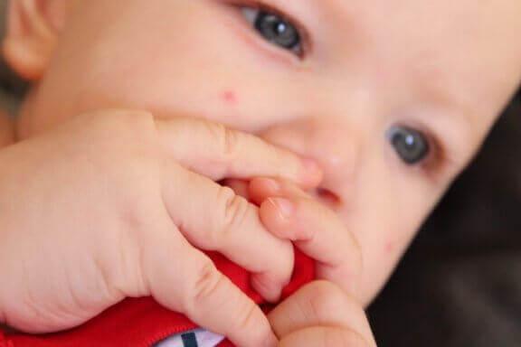 新生児 稗粒腫