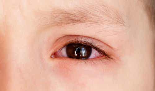 あなたは知っていますか?子どもの結膜下出血の原因